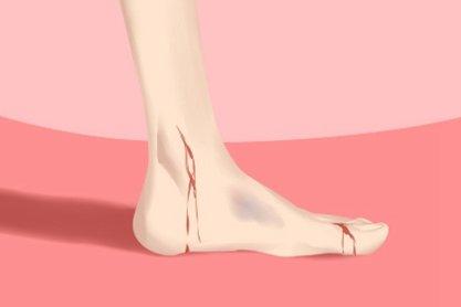 脚受伤(420x280)
